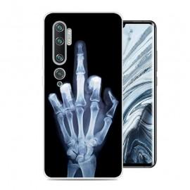 Coque Silicone Xiaomi Mi Note 10 Squelette